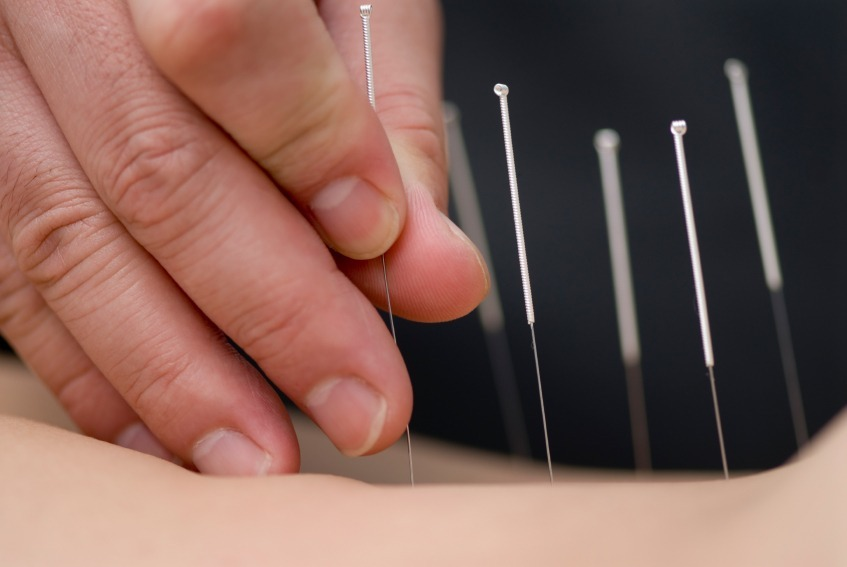 Finding Pain Alleviation Through Acupuncture