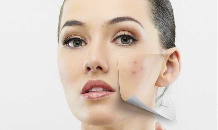 Traditional remedies for acne