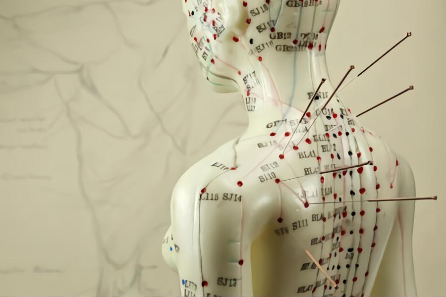 Does Acupuncture Even Work?