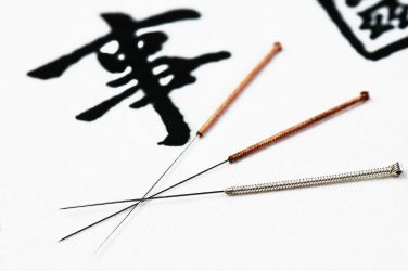 theory behind acupuncture